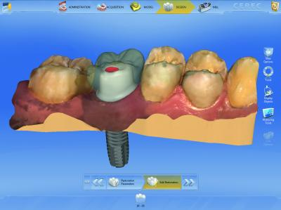 Software Implant Odontoiatria