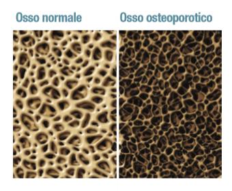 immagine con due sezioni di osso: una sana e una aggredita dall'osteoporosi