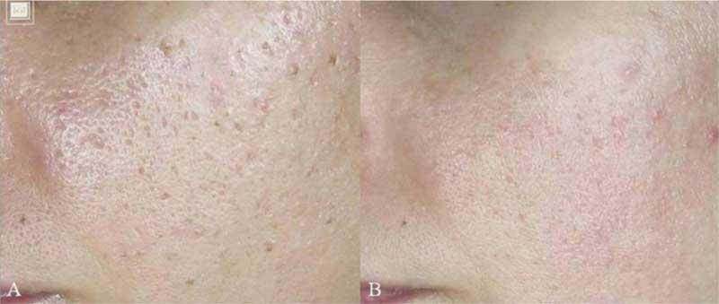 immagini di cicatrici da acne