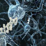 Un nuovo test sulle proteine per la diagnosi precoce del Morbo di Parkinson