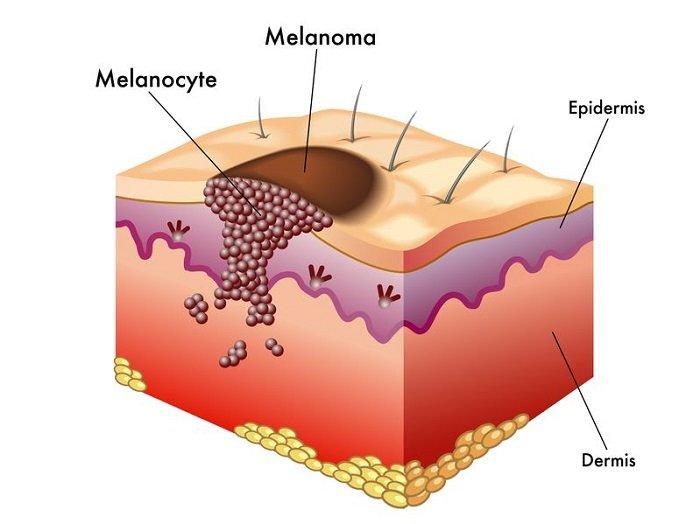 uno schema della diffusione del melanoma sulla pelle