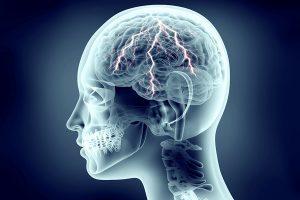 immagine didascalica di un cervello colpito dall'epilessia