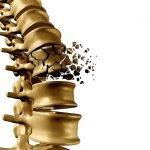 Osteoporosi: un nuovo test potrebbe aiutare a prevenirla con anni di anticipo