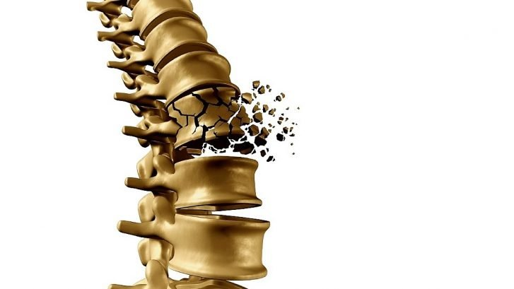 immagine di una colonna vertrebrale che si frattura