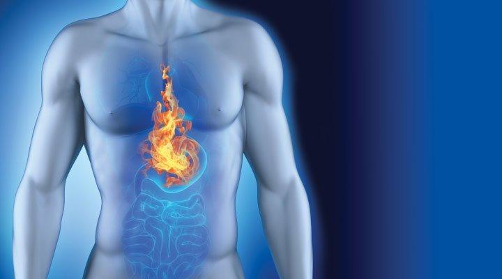 immagine rappresentativa del bruciore di stomaco