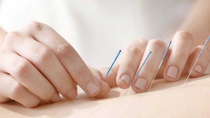 agopuntura e due mani che utilizzano gli aghi