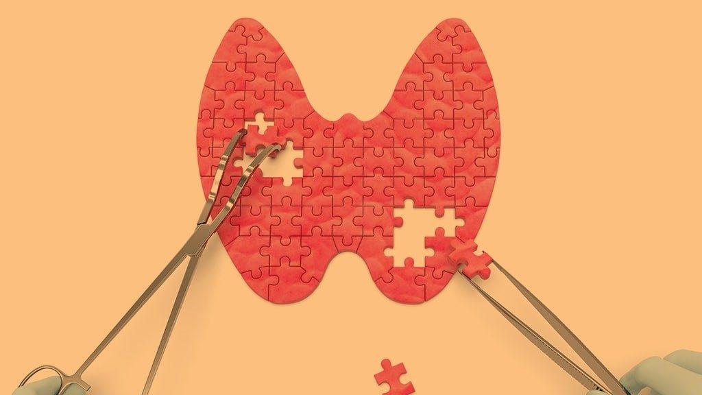 Due mani operano una finta tiroide costruita con pezzi di puzzle