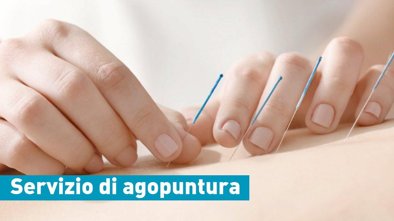 servizio di agopuntura casa di cura villa donatello firenze
