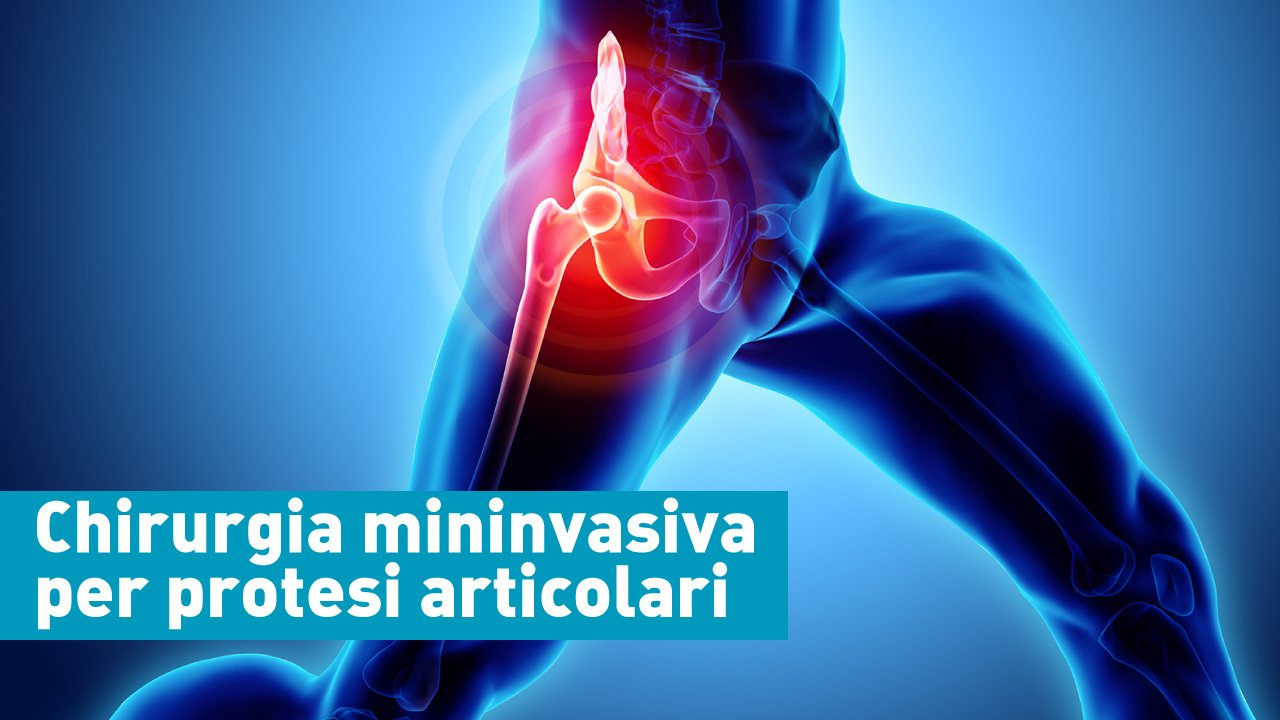 chirurgia mininvasiva per protesi articolari casa di cura villa donatello firenze